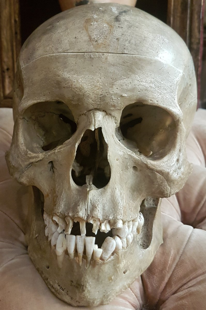 Medical Didactic Object Osteology Curiosity: Medicalized Skull With Inscriptions And Abscess
