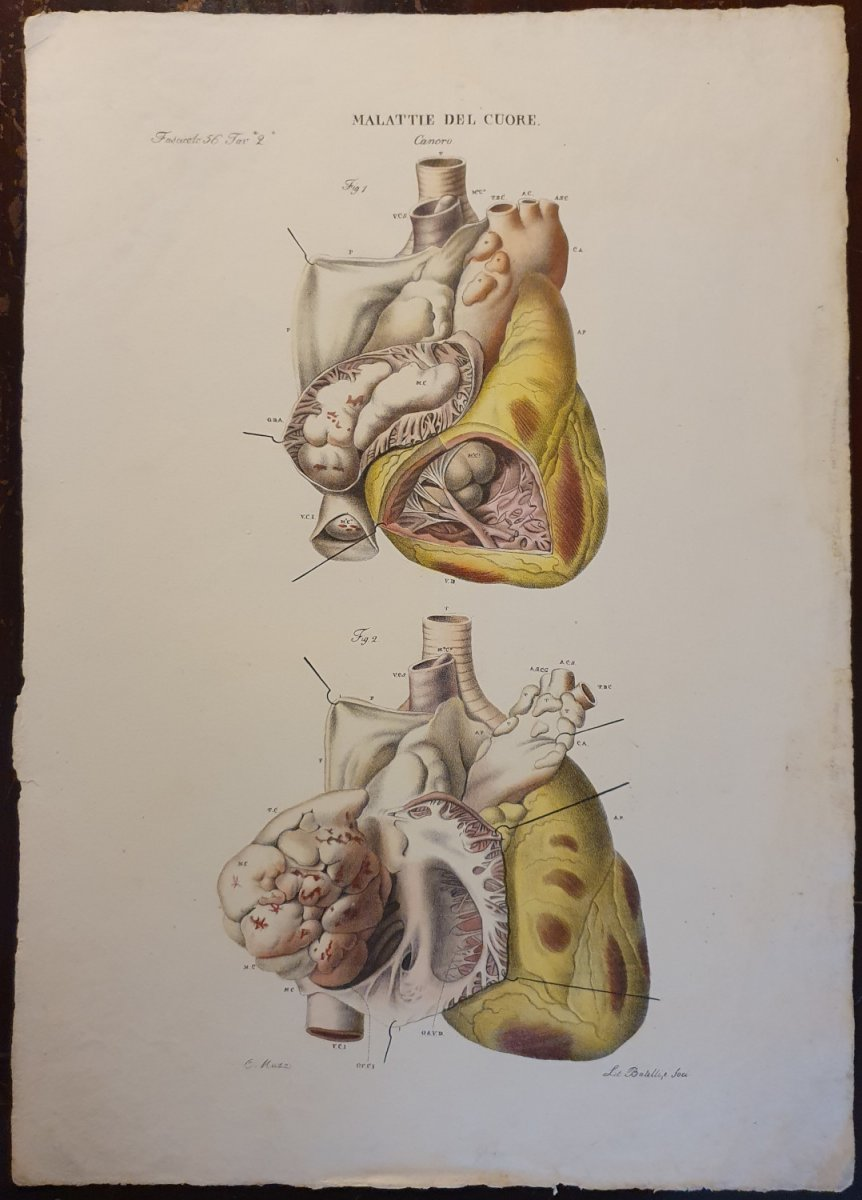 Pathological Anatomical Color Engraving Heart Disease Jean Cruveilhier 1839