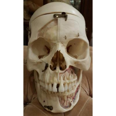 Medical Didactic Object Osteology Curiosity: Flayed Skull Medicalized Somso Or Kilgore