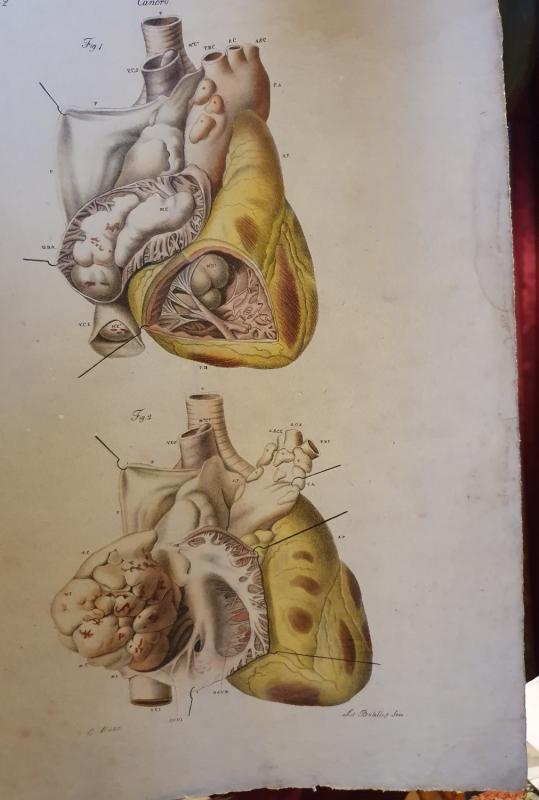 Pathological Anatomical Color Engraving Heart Disease Jean Cruveilhier 1839-photo-4