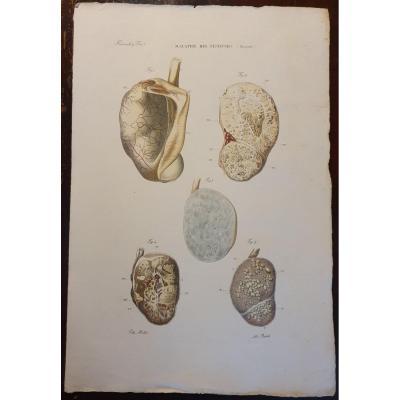 Gravure Couleur Anatomique Pathologique Maladie Des Testicules Jean Cruveilhier 1839