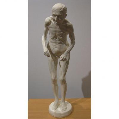 Statuette d'Une Femme Ayant Parkinson d'Après Richer - 1895