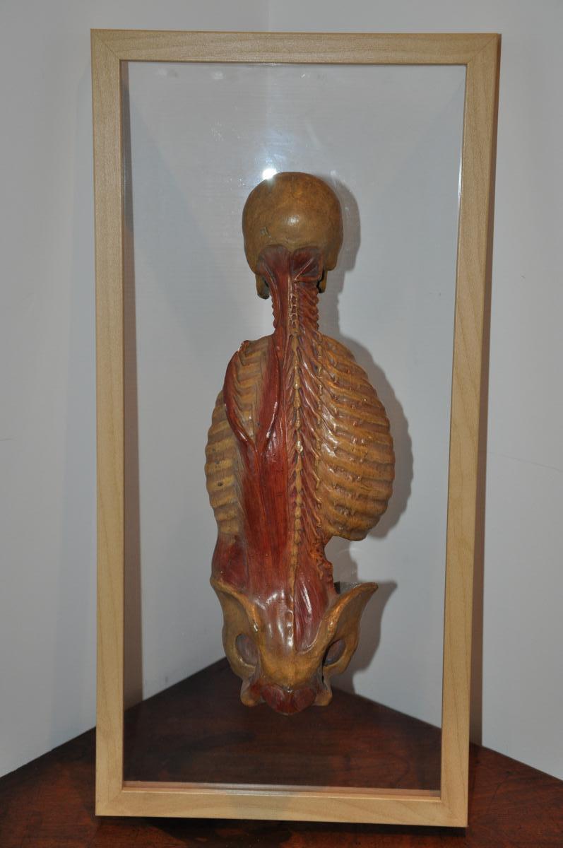 écorché Anatomique Du XIXème Siècle  : Dos écorché